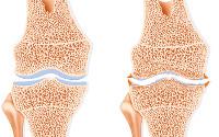 Knee Osteoarthritis, Drawing